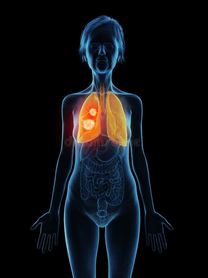 um tumor mais velho do pulmão das fêmeas ilustração do vetor
