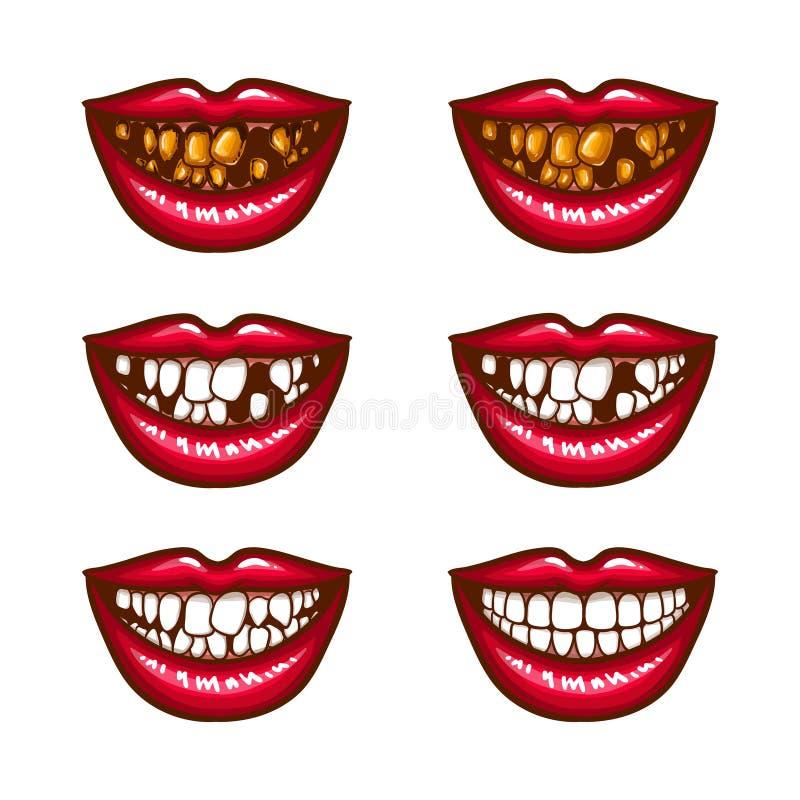 Uma coleção de ícones do pop art dos bordos fêmeas vermelhos - sorrindo, com dentes faltantes, com dentes estragados ilustração royalty free