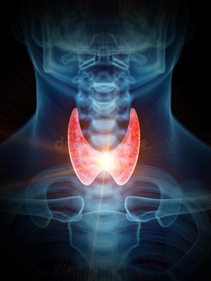 Uma glândula de tiroide dolorosa ilustração royalty free