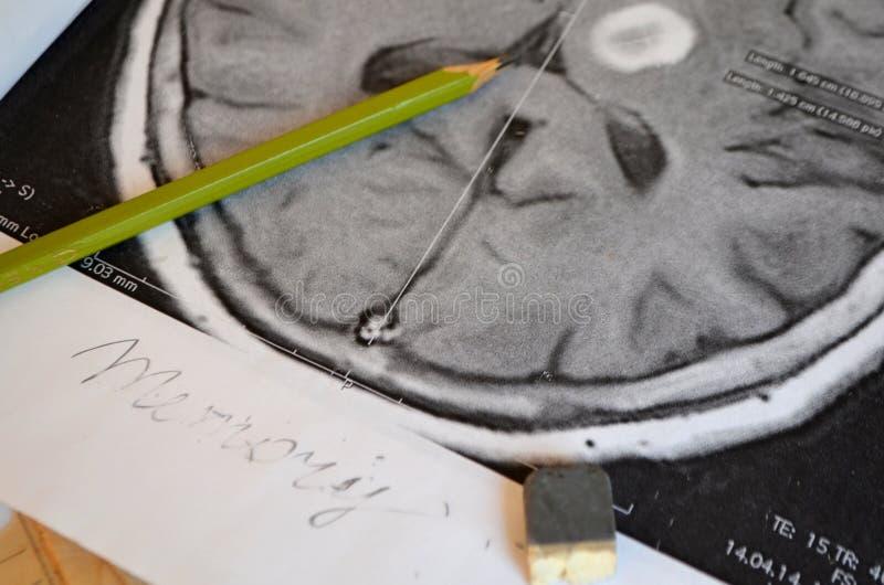 Uma imagem de um curso Doença e doença da demência como uma perda de função e de memórias do cérebro imagem de stock