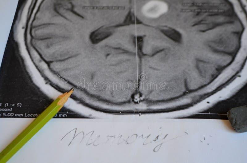 Uma imagem de um curso Doença e doença da demência como uma perda de função e de memórias do cérebro imagens de stock royalty free