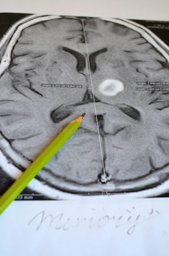Uma imagem de um curso Doença e doença da demência como uma perda de função e de memórias do cérebro foto de stock royalty free