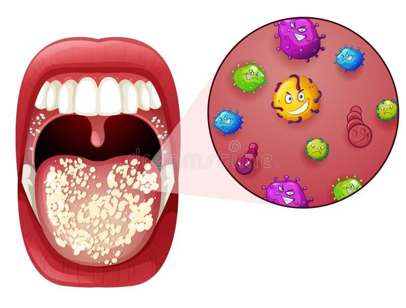 Uma infecção humana do vírus da boca ilustração royalty free