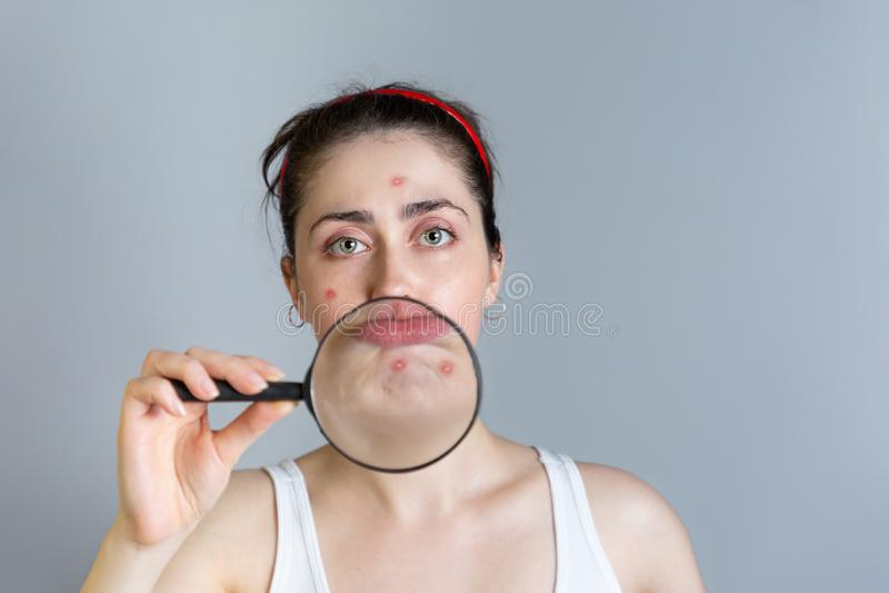 Uma jovem mulher guarda uma lupa a sua cara, mostrando espinhas em seu queixo O conceito da cosmetologia e da acne fotos de stock
