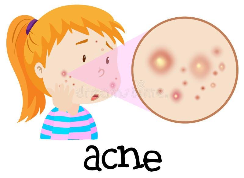 Uma jovem mulher que está com a acne ilustração royalty free