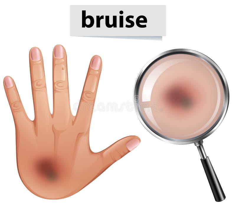 Uma mão humana com equimose ilustração royalty free