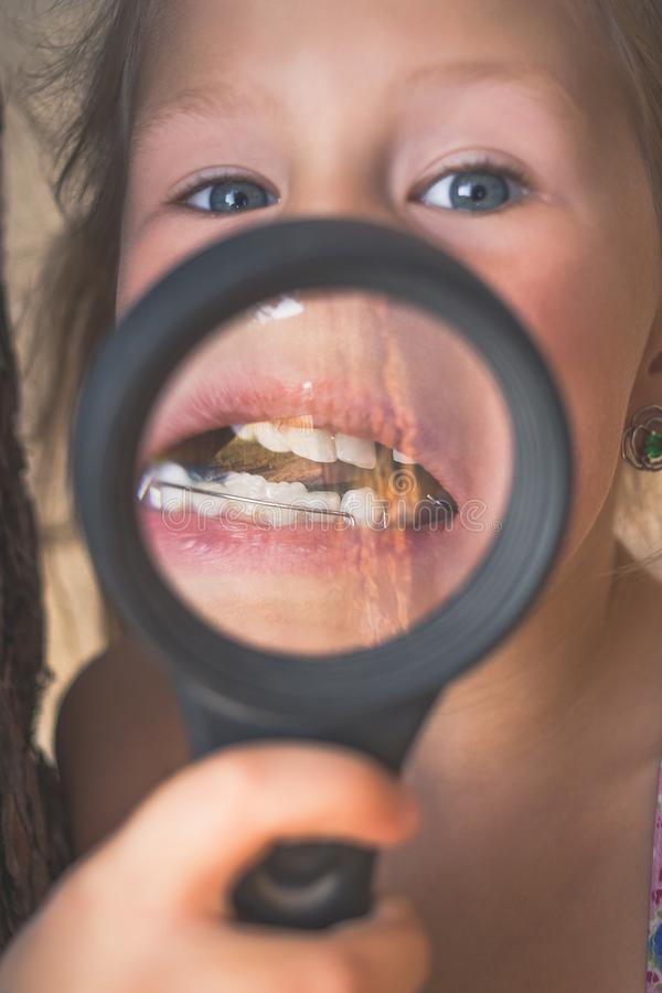 Uma menina pôs uma lupa a sua boca para mostrar um dispositivo ortodôntico, uns dentes curvados e um dente trêmulo fotos de stock