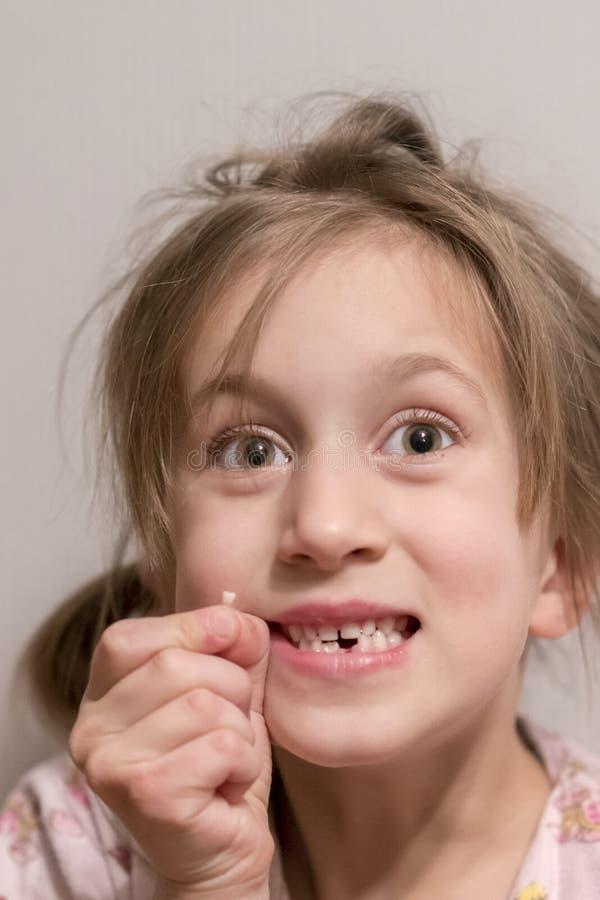 Uma menina teve um dente de leite Guarda-o em sua mão imagem de stock royalty free