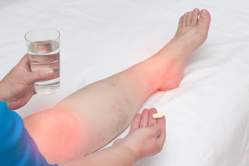 tratament articular chondroprotector