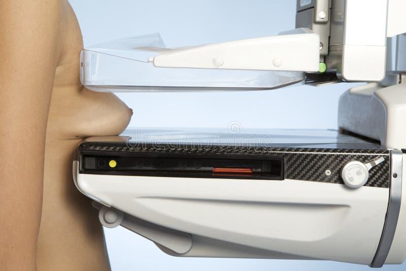 Uma mulher nova que toma um mamograma imagem de stock