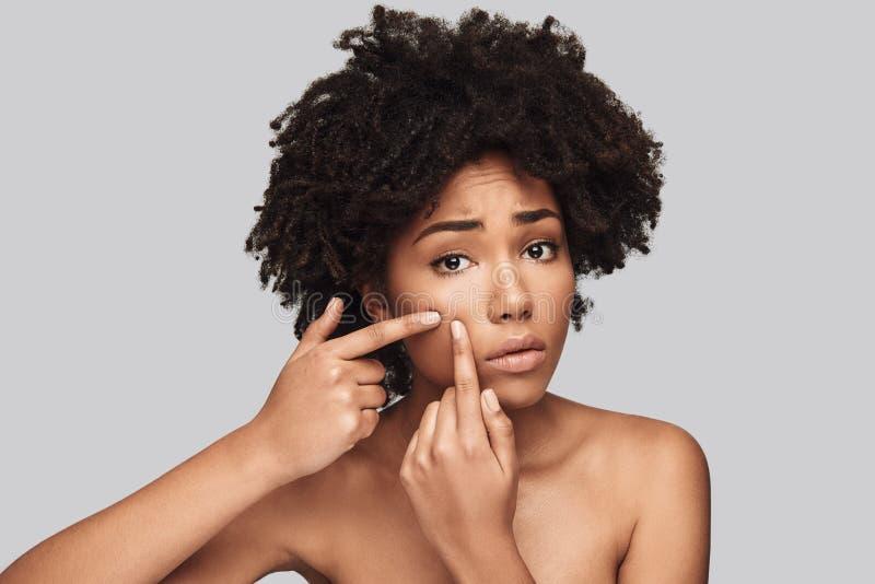 Uma outra acne imagem de stock royalty free
