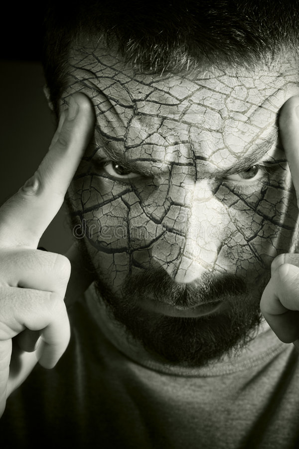 Umgekippter Mann mit gebrochener Haut lizenzfreies stockbild