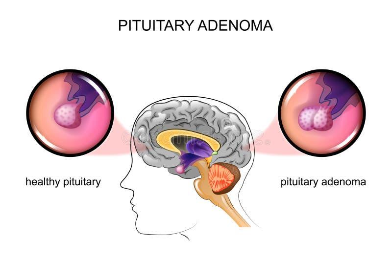 Un adénome pituitaire et pituitaire sain illustration stock