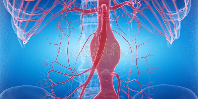 Un aneurysm ilustración del vector