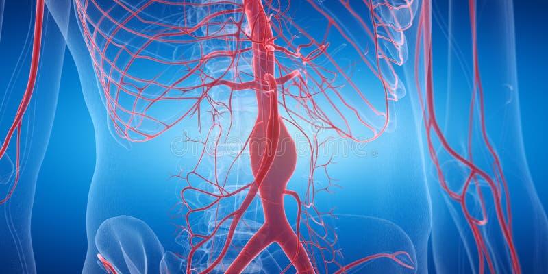Un aneurysm stock de ilustración