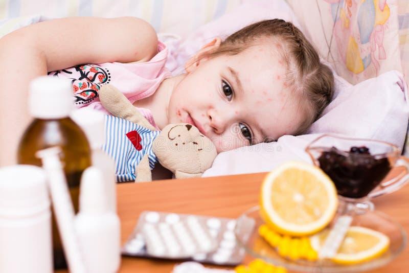 Un bambino a letto chi ha la varicella e droghe lui fotografie stock