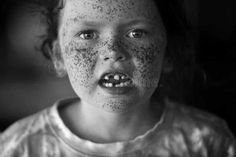 Un bel enfant avec des taches ratées et des dents manquantes photos stock