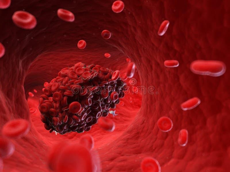 Un caillot sanguin illustration libre de droits