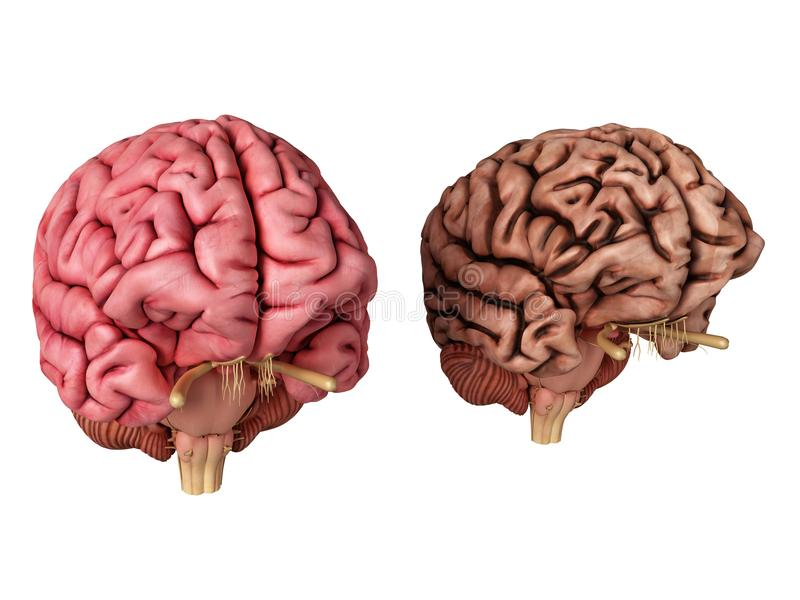 Un cerveau sain et malsain illustration de vecteur