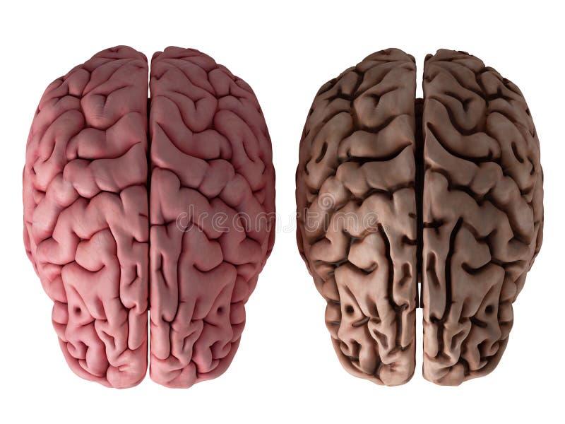 Un cerveau sain et malsain illustration stock