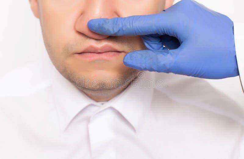 Un cirujano plástico examina la nariz del paciente masculino de un paciente antes de cirugía Rinoplastia, un método moderno de ci fotos de archivo