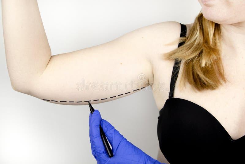 Un cirujano plástico se está preparando para apretar la piel de las manos Brachioplasty - brazos plásticos, piel colgante que cue fotografía de archivo