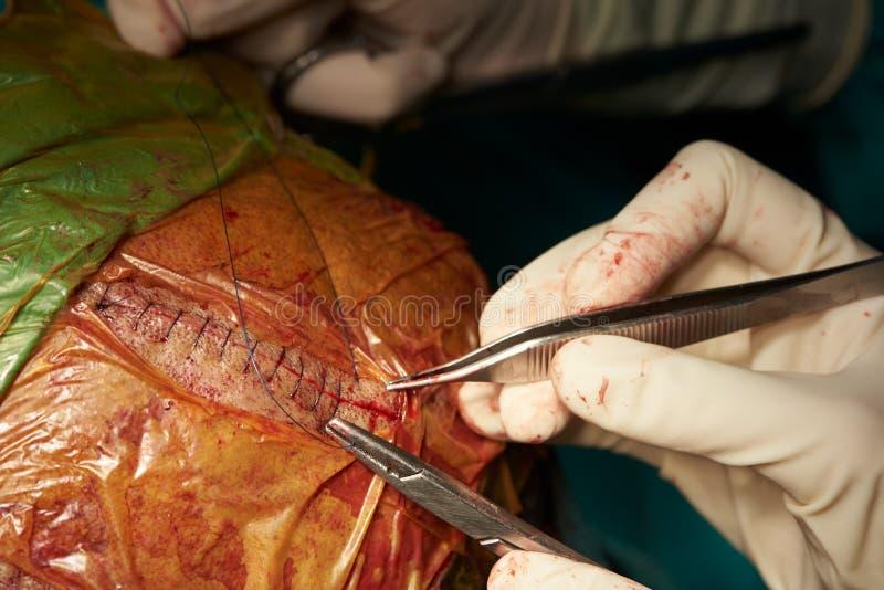 Un cirujano que sutura la herida en sala de operaciones imagenes de archivo