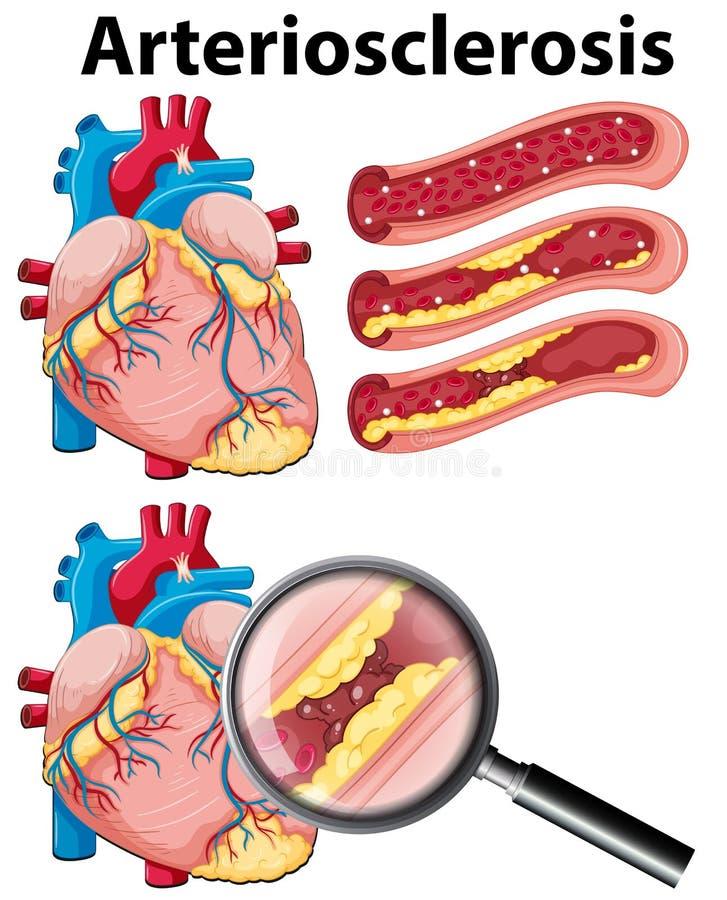 Un corazón con arteriosclerasis en el fondo blanco stock de ilustración