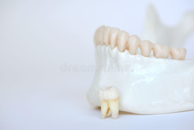 Un dente molare di saggezza sul modello umano della mandibola fotografia stock