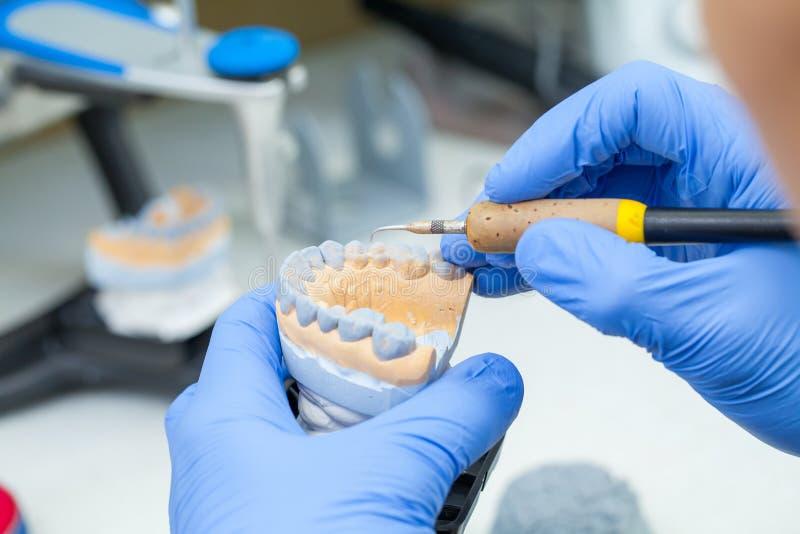 Un dentista dell'odontotecnico che lavora con le protesi in un laboratorio con la cera su un modello della mandibola immagine stock libera da diritti