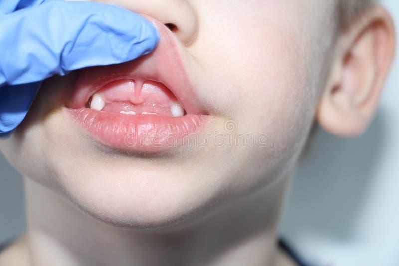 Un dentista examina los dientes de beb? en el muchacho La p?rdida de dientes de leche foto de archivo libre de regalías
