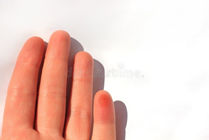 Un dito pungente da un'ape Mano femminile con un morso di insetto, su fondo bianco, spazio della copia immagine stock libera da diritti