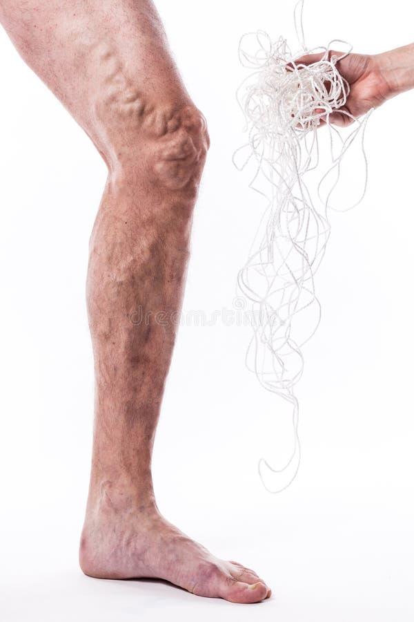 Un enredo de cuerdas con un hombre que está enfermo con las varices del th fotos de archivo libres de regalías