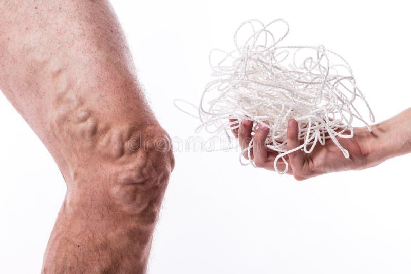 Un enredo de cuerdas con un hombre que está enfermo con las varices del th foto de archivo