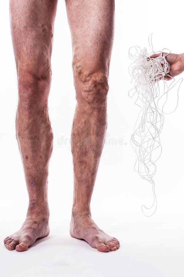 Un enredo de cuerdas con un hombre que está enfermo con las varices del th imagen de archivo