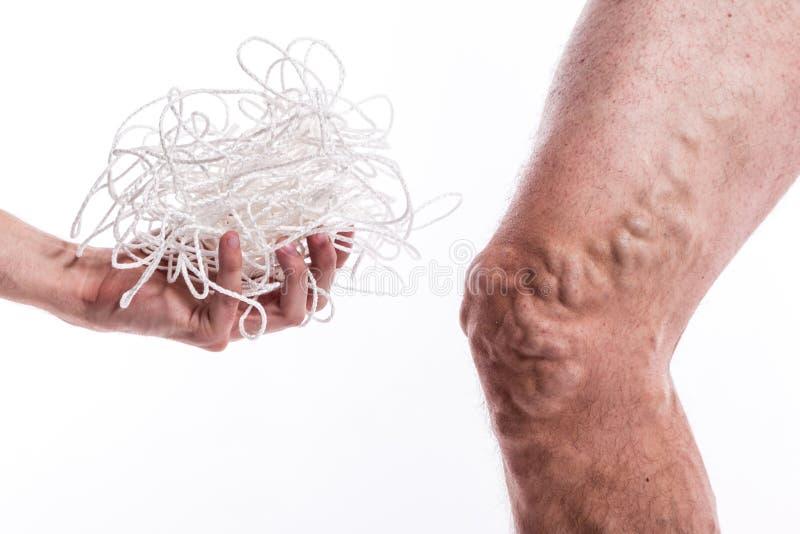 Un enredo de cuerdas con un hombre que está enfermo con las varices del th fotografía de archivo libre de regalías