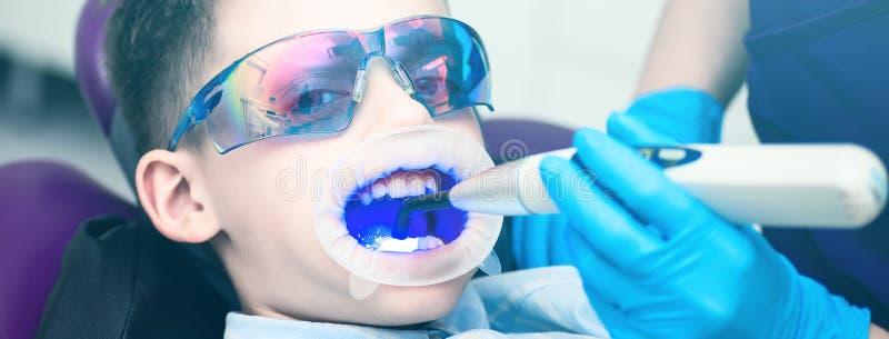 Un garçon avec des lunettes dans la chaise dentaire La bouche a dirigé la lampe de lightpolymerization avec la lumière bleue pour photos stock