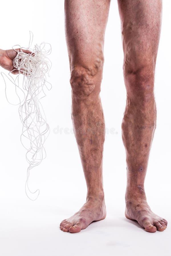 Un groviglio delle corde con un uomo che è malato con le vene varicose di Th fotografia stock libera da diritti