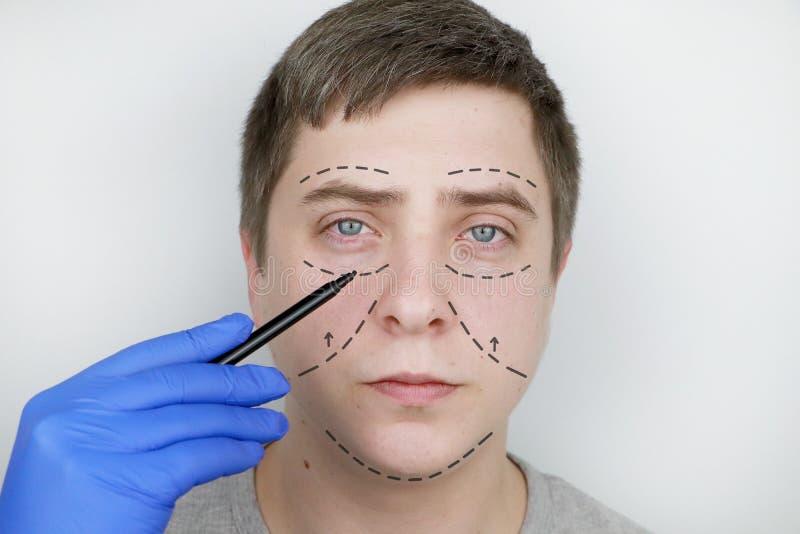 Un hombre en la recepción en el cirujano plástico Antes de cirugía plástica: elevación de la ceja, de la frente, de la barbi fotografía de archivo