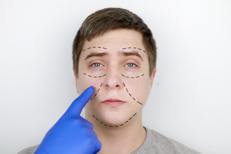 Un hombre en la recepción en el cirujano plástico Antes de cirugía plástica: elevación de la ceja, de la frente, de la barbi imagen de archivo libre de regalías
