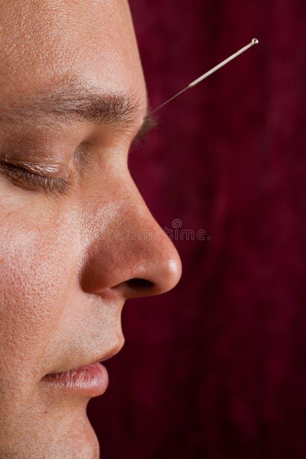 Un hombre joven recibe la acupuntura facial imagenes de archivo