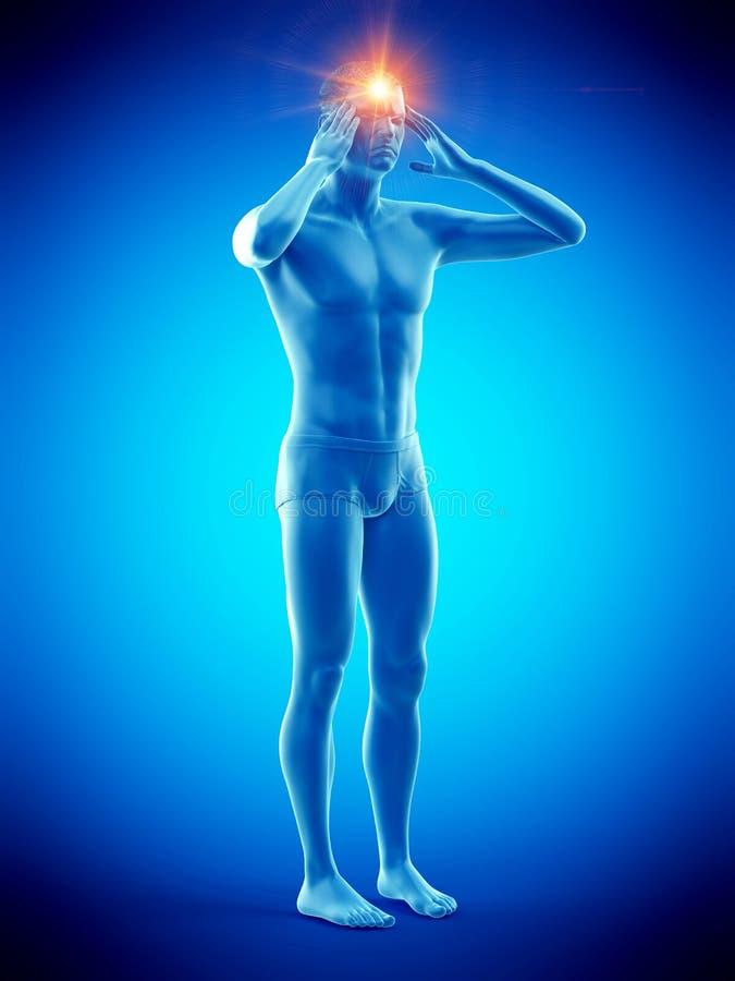 Un hombre que sufre de dolor de cabeza ilustración del vector
