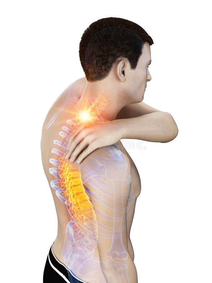 Un hombre que tiene un cuello doloroso libre illustration