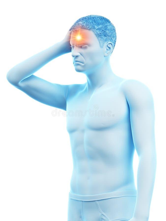 Un hombre que tiene dolor de cabeza libre illustration