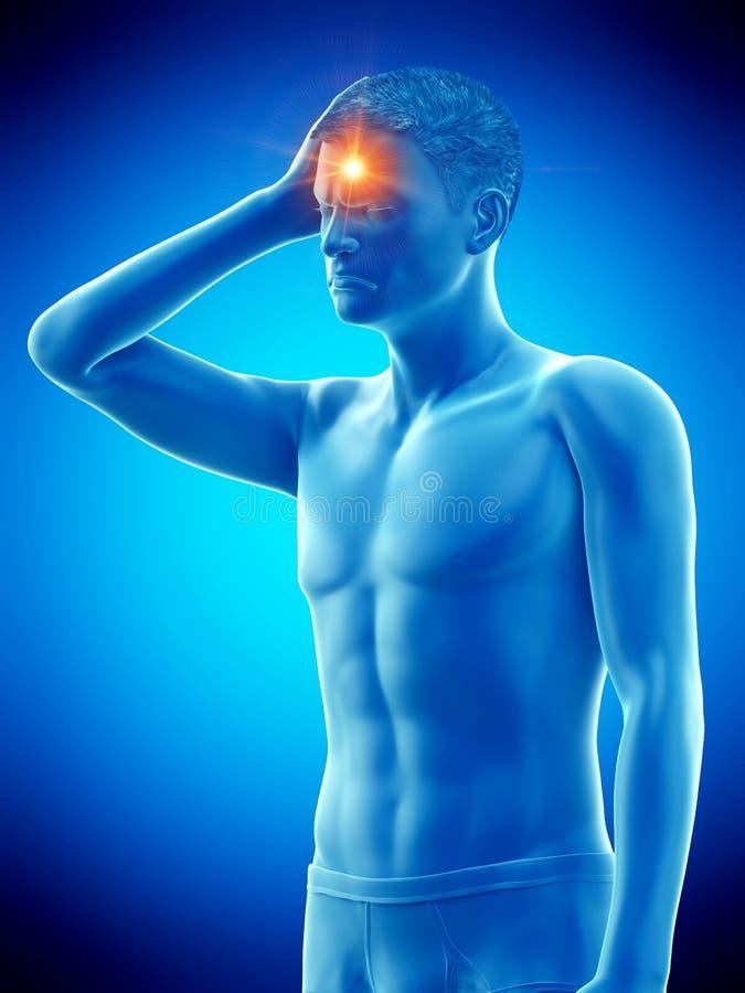 Un hombre que tiene dolor de cabeza stock de ilustración