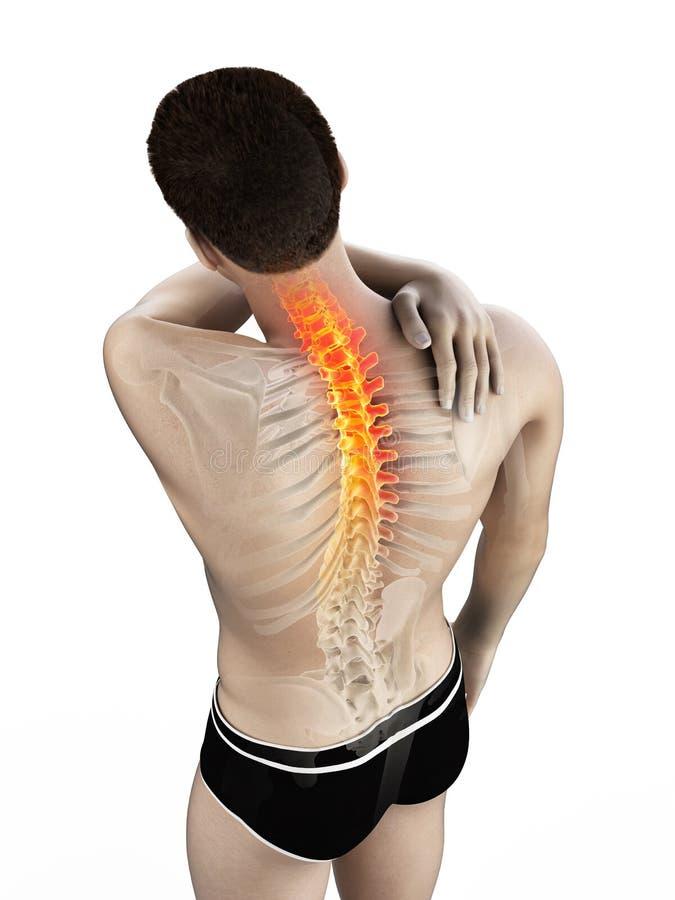 Un hombre que tiene un dolor de espalda stock de ilustración