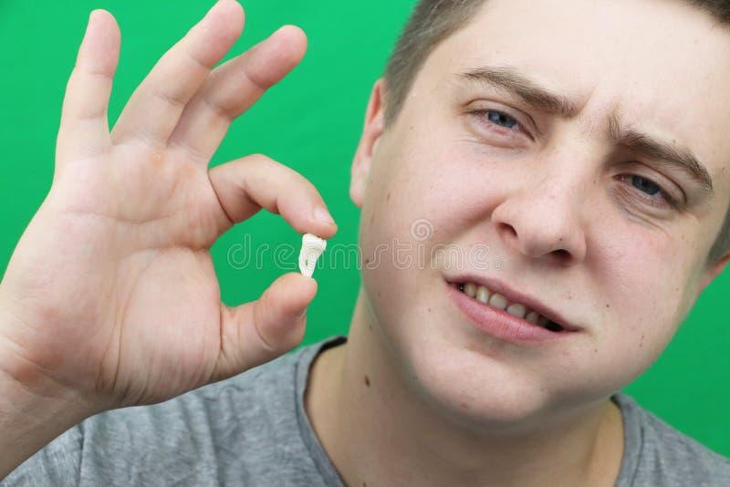 Un homme après élimination d'une dent de sagesse L'opération pour enlever les huitième dents photographie stock libre de droits