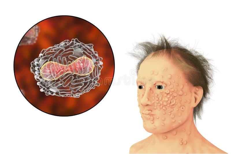 Un homme avec l'infection de variole et virus de la variole, un virus de la famille d'Orthopoxviridae qui cause la variole illustration de vecteur