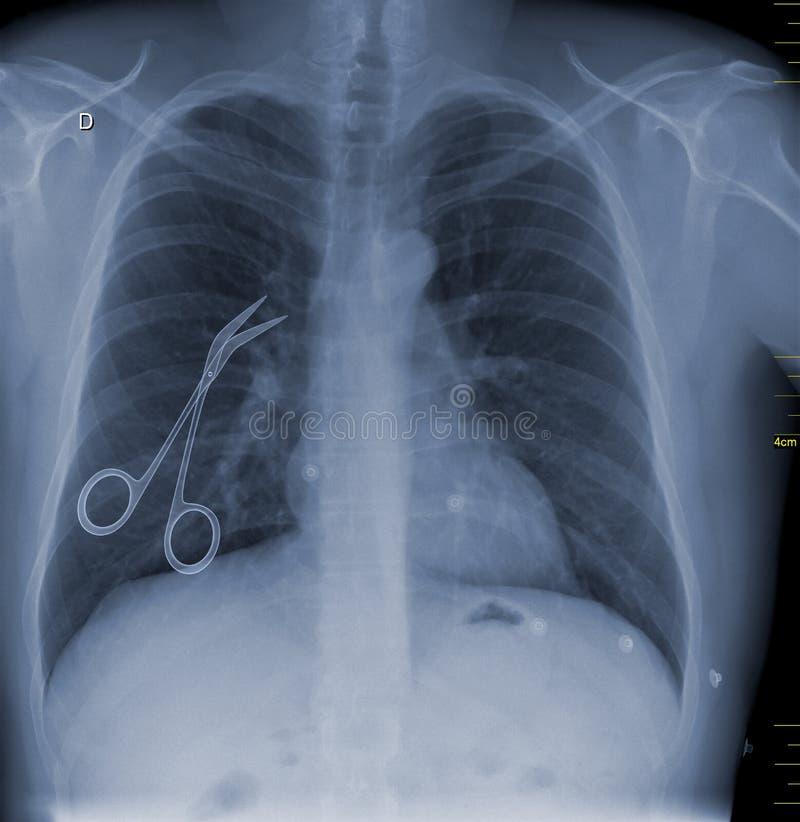 Un'immagine concettuale dell'atto illecito medico rappresentata con le forbici chirurgiche lasciate dentro un paziente dopo l'amb illustrazione di stock