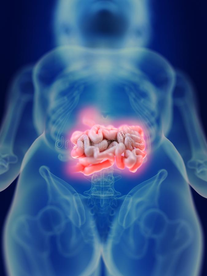 Un intestin enflammé illustration de vecteur